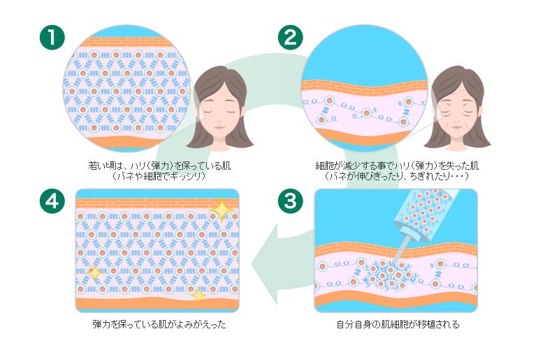 肌の再生治療の仕組み