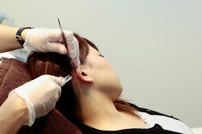 皮膚採取・細胞培養